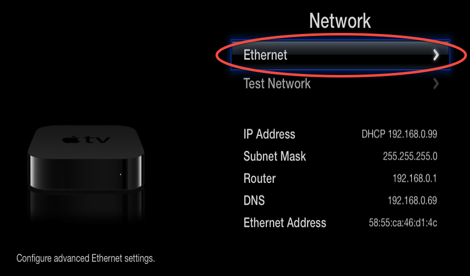 5.2 select network connection ethernet